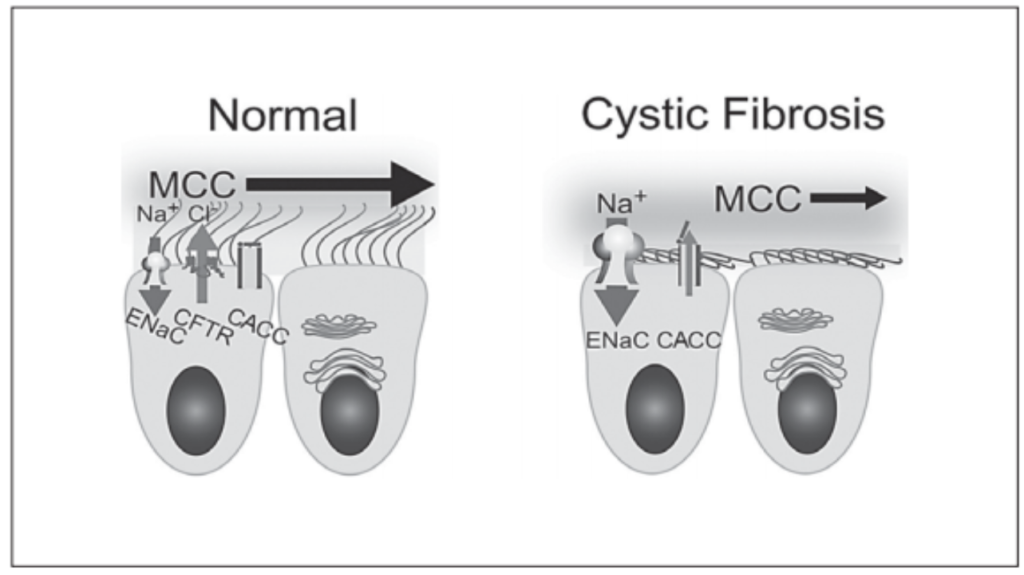 Fig. 1. Normal VS. Cystic Fibrosis (3)