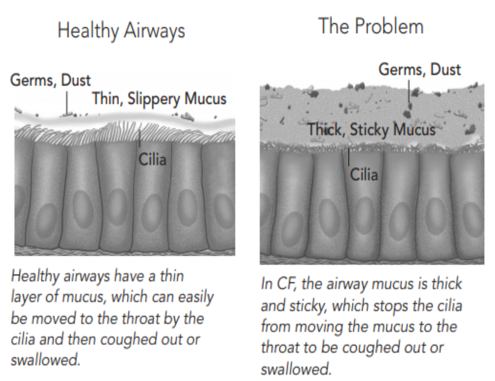 Fig. 2. Healthy Airways VS. Cystic Fibrosis (5)