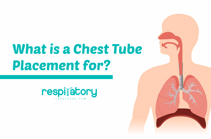 what-is-a-chest-tube-placement-for